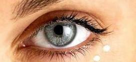 rughe contorno occhi