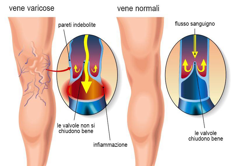 Le gambe a prurito di varicosity che trattare