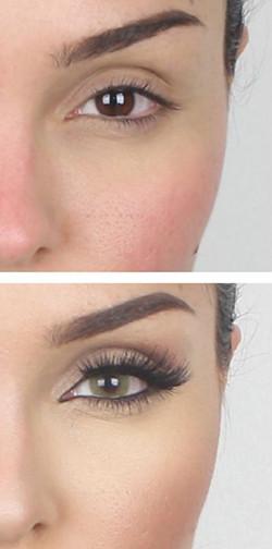 miglior contorno occhi