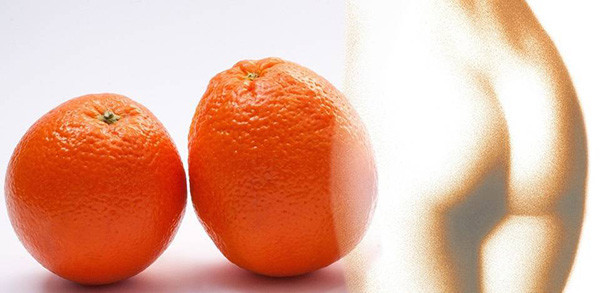 cellulite buccia di arancia